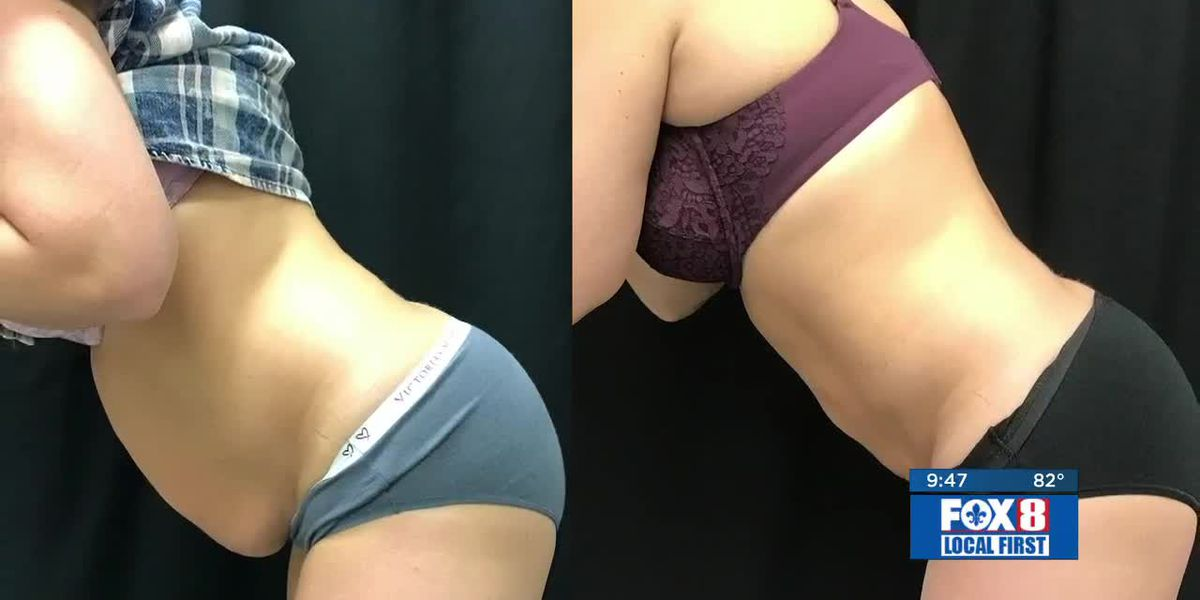 New body contouring procedure offers surgical results without scars