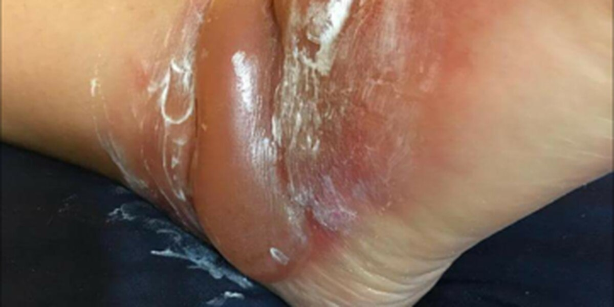 Severe reaction to new sandals leads woman on a painful path