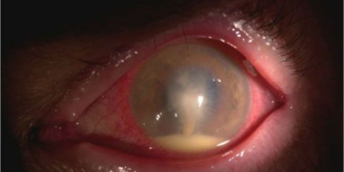 Eyes wide shut: Counterfeit contacts could cause horrifying Halloween