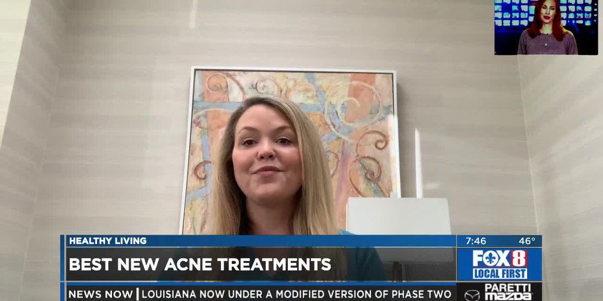 New treatments for acne