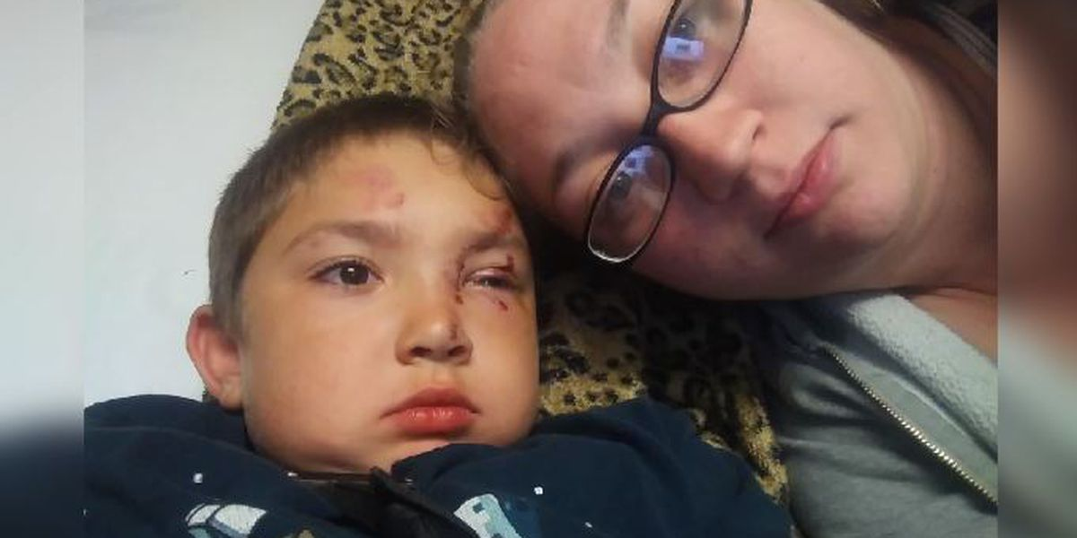 Mother says 6-year-old son attacked after standing up to friend's bullies