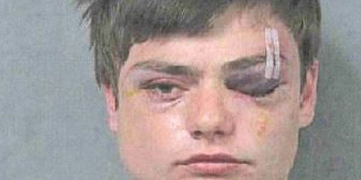 Teen who alleges police brutality files JPSO complaint